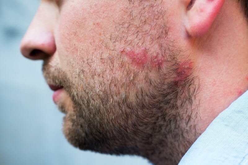 Alopecia Beard | What To Do When You're Losing Your Beard